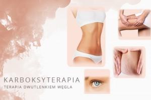 karboksyterapia-medyczna-gdansk